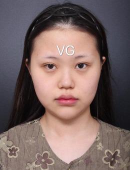 韩国VG百利酷整形外科隆鼻+面吸前后对比案例图