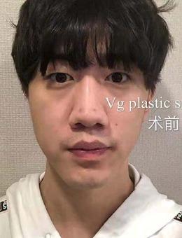韩国VG百利酷整形外科男士眼鼻整形案例,一个月变化超明显!