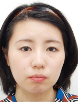日本水之森美容外科远藤刚史院长植入下巴假体的案例分享!_术前