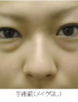 眼袋黑眼圈竟然可以这么消除!银座Miyuki美幸整形外科手术案例分享!_术前