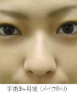 眼袋黑眼圈竟然可以这么消除!银座Miyuki美幸整形外科手术案例分享!_术后