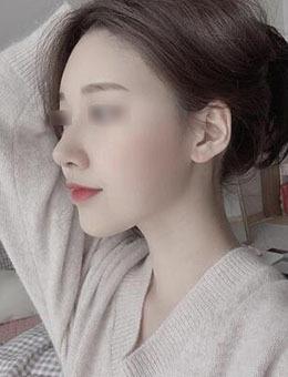 -韩国louvre整形外科初鼻矫正前后对比案例图