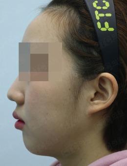 韩国pinkline皮肤医院下巴整形前后对比图_术前