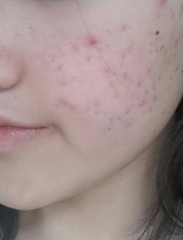 韩国iyou皮肤科医院皮肤祛痘案例