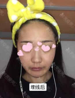韩国延世姿丽来姻皮肤科面部埋线提升案例