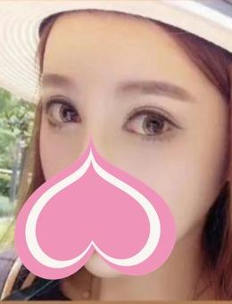 上海清沁医疗美容医院芭比翘睫电眼案例