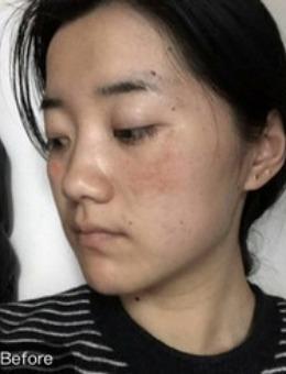 烟台华怡医学美容医院鸡尾酒黄褐斑疗法案例对比