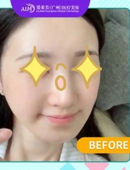 广州爱莱美整形医院玻尿酸丰下巴恢复全过程真实记录