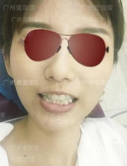 广州壹加壹口腔医院平面模特隐适美牙齿矫正案例