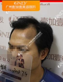 广州壹加壹整形医院男士植发40天真实案例