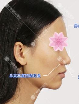 广州曙光整形医院隆鼻+鼻尖鼻翼+鼻基底手术案例
