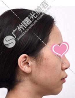 广州曙光整形医院皮肤美容案例对比图(多图)_术前