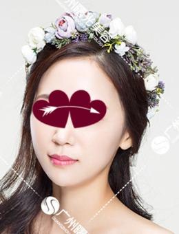 广州曙光整形医院皮肤美容案例对比图(多图)_术后