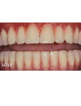-60岁在重庆金航口腔做的全口种植牙过程