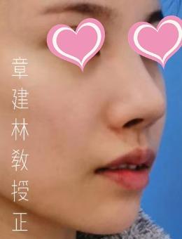 上海仁爱颌面整形医院正颌手术案例