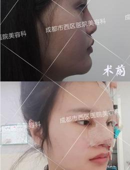 鼻部修复手术前后对比照片