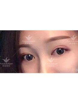 潍医整形杨彪炳做眼整形怎么样?双眼皮+提肌两个月案例