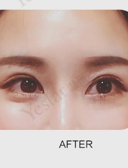 1万多在温州艺星做的眼部多项整形太值了!前后对比图差别巨大!