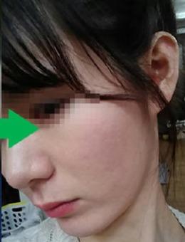 韓國陳整形醫院治療痘坑案例對比_術后