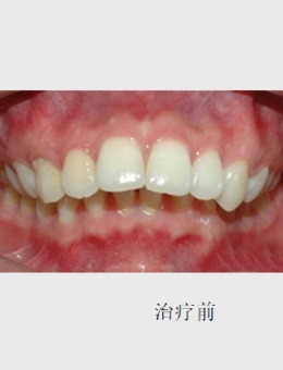 成都菁品口腔門診部齙牙矯正案例,牙齒矯正前后對比圖_術前