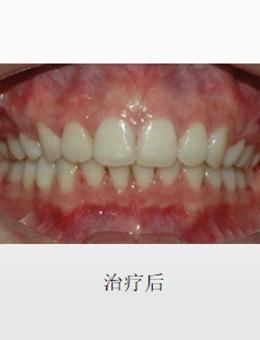 成都菁品口腔門診部齙牙矯正案例,牙齒矯正前后對比圖_術后