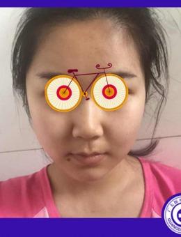 面部吸脂會下垂嗎?我在廣州光大整形做全臉抽脂兩個月后有了答案!_術前