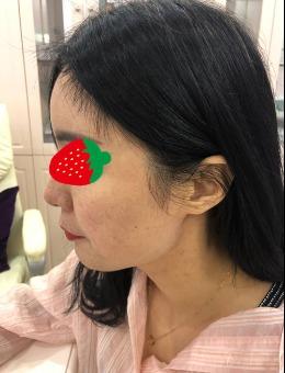 千萬別做下頜角手術?我找廣州廣大柳超醫生做Vline后說說我的感受!
