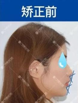 廣州曙光口腔帶牙套12個月變化,牙齒矯正效果勝似墊下巴_術前