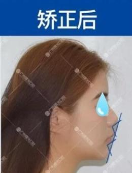 廣州曙光口腔帶牙套12個月變化,牙齒矯正效果勝似墊下巴_術后