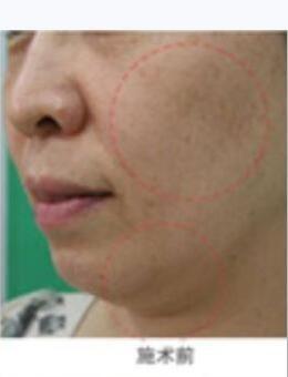 韓國美來可整形醫院TR面部提升術前后對比案例_術前
