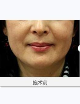 韓國美來可整形醫院面部提升術案例圖片_術前