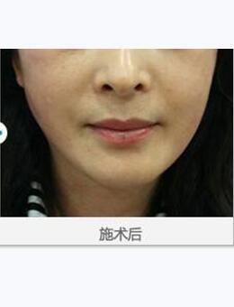 韓國美來可整形醫院面部提升術案例圖片_術后