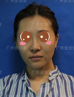千万不要做面部脂肪填充?看看我在广州壹加壹找李明做太阳穴和额头填充的效果!