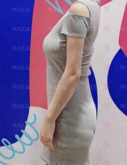 韓國WIZ&美整形外科吸脂瘦手臂的效果及恢復圖分享_術后
