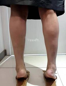 韓國WIZ&美整形外科小腿神經阻斷手術前后對比案例!_術前