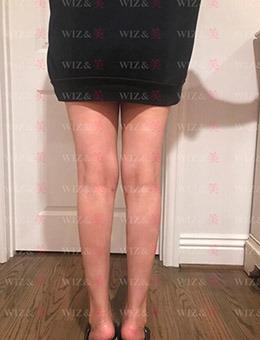 韓國WIZ&美整形外科小腿神經阻斷手術前后對比案例!_術后