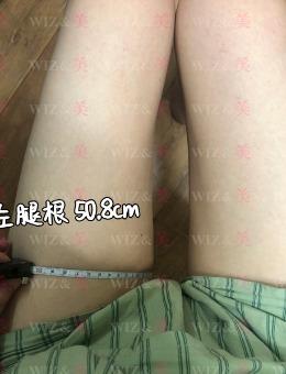 韓國WIZ美超聲波彈力吸脂恢復記錄:腿圍減少5.2厘米!_術后