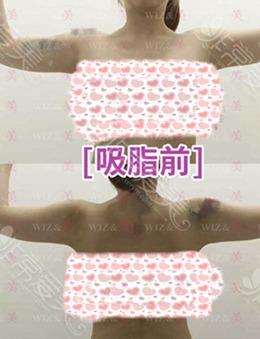 韓國WIZ&美整形外科吸脂瘦手臂的效果及恢復圖分享_術前