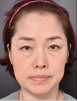 韩国VG百利酷整形医院,面部拉皮手术前后对比案例公布!