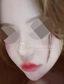 韩国可来熙整形外科面部提升+自体脂肪填充案例