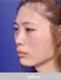 韩国VG百利酷整形医院面部不对称综合整形,歪脸超强逆袭!