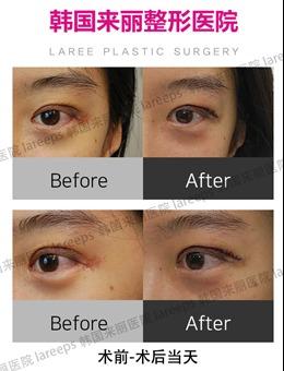 韩国萝莉laree整形外科割双眼皮术后1-5天恢复过程图