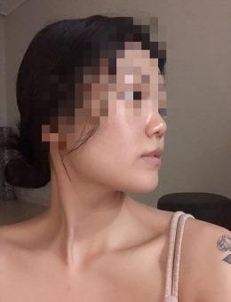 -韩国VG百利酷整形医院3D-CT隆鼻修复整形手术案例
