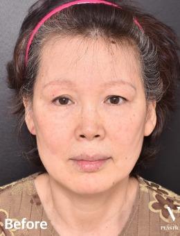 -韩国VG百利酷医院面部拉皮手术,前后对比案例效果明显