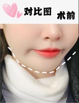 韩国宝士丽整形医院官网假体垫下巴案例分享_术前
