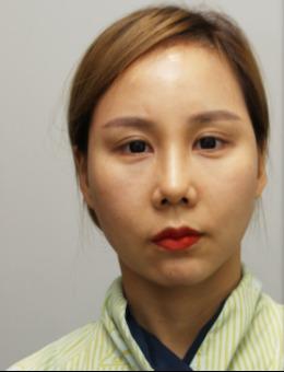 -韩国丽珍整形外科颧骨内推手术案例展示