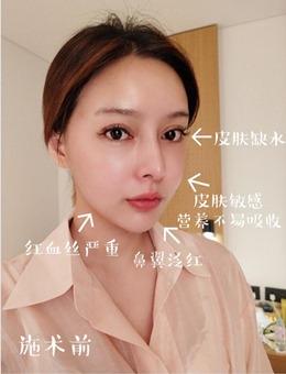 韩国宝士丽整形外科丽驻兰+香奈儿注射功效及效果展示!_术前
