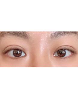 韩国yellow医院双眼皮+开眼角案例
