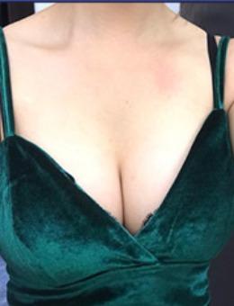 韩国麦恩整形外科隆胸修复真人案例图片展示!