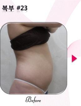 韩国Qline医院腰腹环吸前后图片